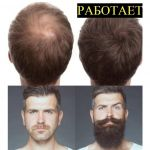 От выпадения волос, для роста бороды