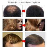 Для роста волос, бороды
